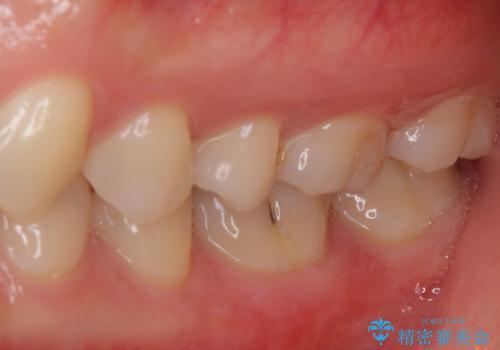セラミックとゴールド 奥歯のむし歯治療の治療前