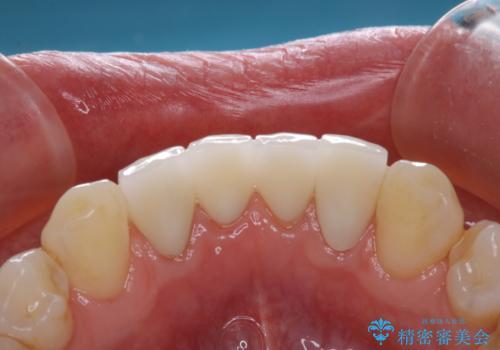 インプラントの2次手術前にPMTCで清潔な口腔内にの治療後