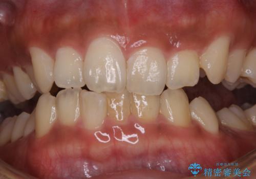 タバコによる着色をPMTCできれいな白い歯にの治療前