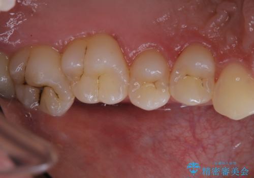 タバコによる着色をPMTCできれいな白い歯にの治療後