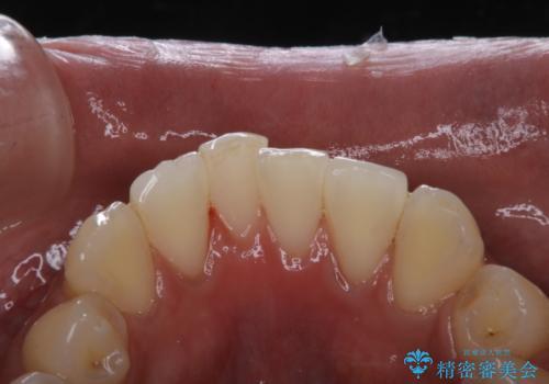 タバコによる着色をPMTCできれいな白い歯にの症例 治療後
