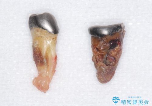 歯がぐらぐらで咬めない 奥歯のインプラント 50代男性の治療前