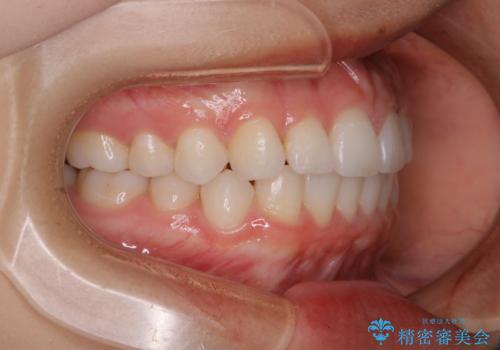 前歯のがたつきをインビザラインで治療の治療後