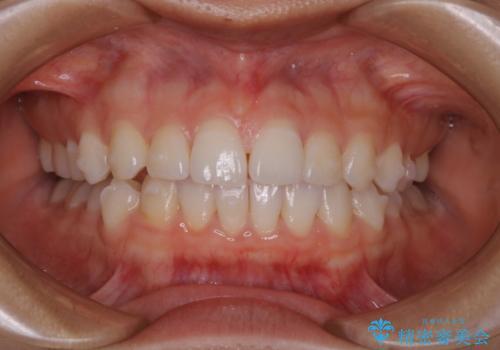 前歯のがたつきをインビザラインで治療の治療中
