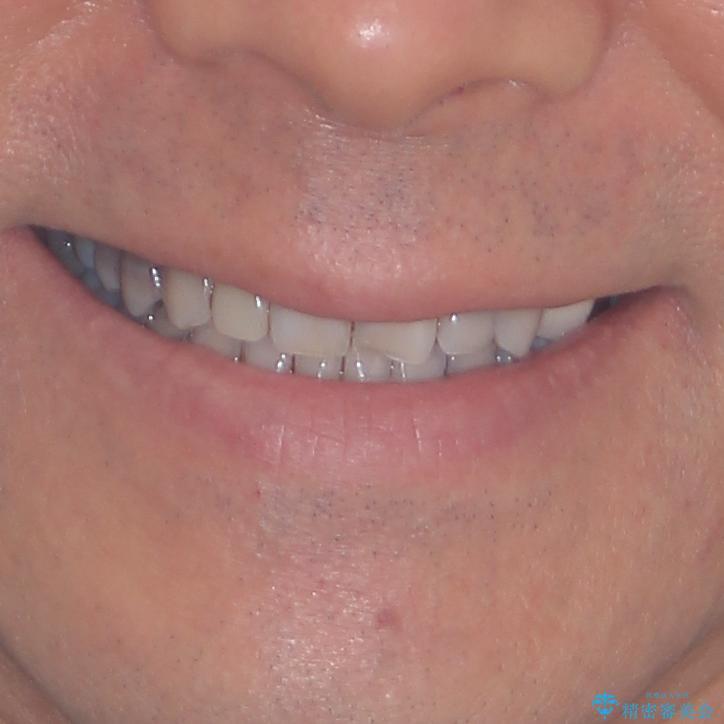 下の歯が前に出てしまう咬み合わせを治したい インビザラインによる矯正治療の治療後(顔貌)