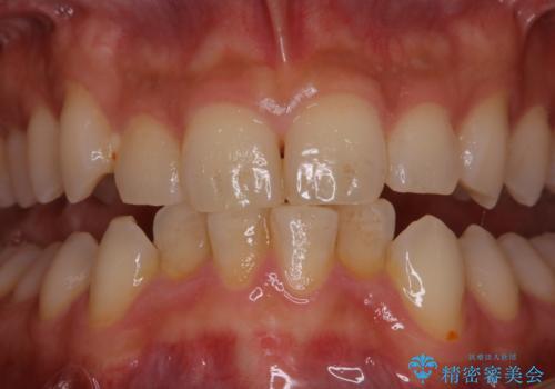 5・6年ぶりに歯のクリーニングの治療前