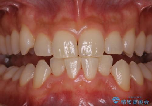5・6年ぶりに歯のクリーニングの治療後