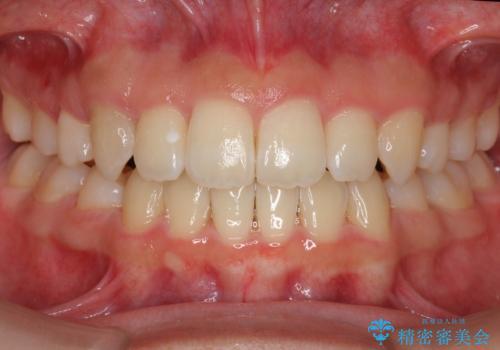 インビザラインチェンジで成功 インビザラインで八重歯の抜歯矯正の症例 治療後