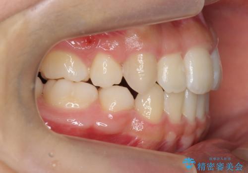インビザラインチェンジで成功 インビザラインで八重歯の抜歯矯正の治療後