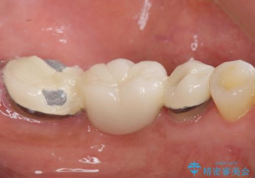 歯が痛い 深いう蝕により神経が死んでいる 50代女性の治療前