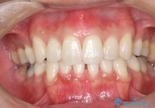 オフィスホワイトニングで、天然の歯を今より白く明るく!!の症例 治療後