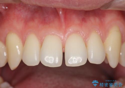 前歯のすき間 セラミックで綺麗に 最短で治療の症例 治療前