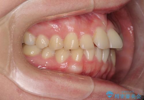 顎が痛くなる咬み合わせが気になる 想定していなかった矯正治療を行うことにの治療前