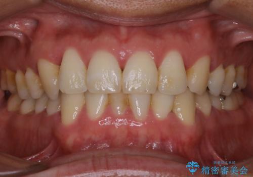 数年ぶりの歯医者で歯を白くしたいの治療前