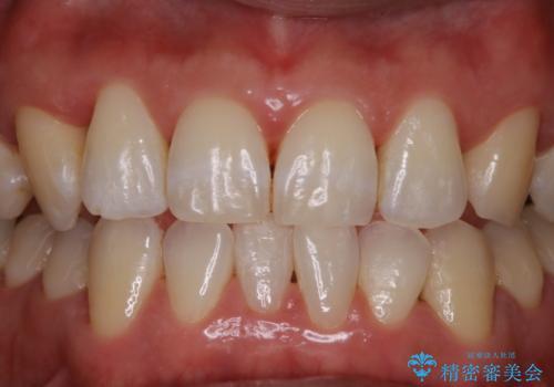 数年ぶりの歯医者で歯を白くしたいの治療後