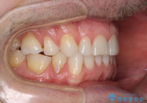 抜歯矯正の後戻りが気になる インビザライン・ライトによる矯正治療の治療中