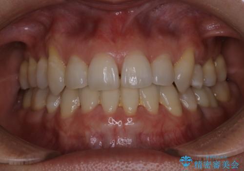 数年ぶりに歯科医院で歯石除去の治療前
