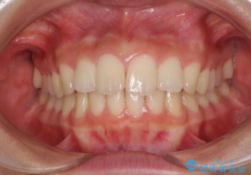 就職前にきれいな歯並びにしたい 大学生のインビザライン矯正の治療中