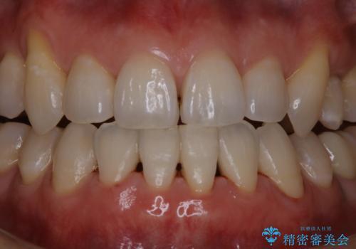 数年ぶりに歯科医院で歯石除去の治療後