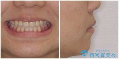 気がつくと口が開いてしまう 閉じにくい口元改善の抜歯矯正の治療後(顔貌)