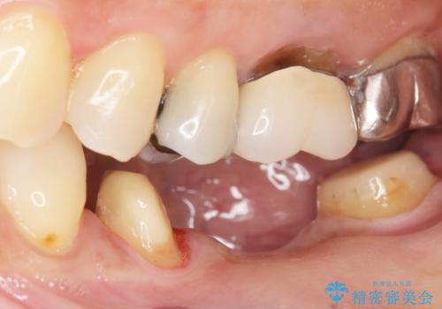 歯が痛い 深いう蝕により神経が死んでいる 50代女性の治療中