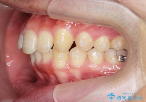 [ インビザライン ] マウスピース矯正で治す出っ歯の治療の治療中