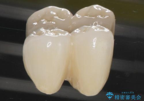 歯がぐらぐら 再生療法で抜かずに残す 50代男性の治療後