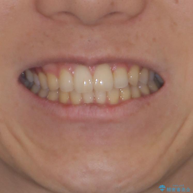 前歯のクロスバイトと抜歯が必要な奥歯の虫歯 インビザラインとインプラント治療の治療後(顔貌)