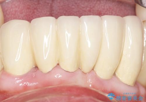 他院で抜歯と言われた歯 歯も神経も残したい 50代男性の症例 治療後