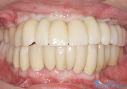 他院で抜歯と言われた歯 歯も神経も残したい 50代男性の治療後