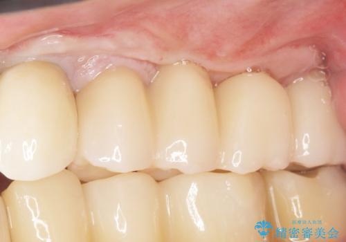 歯肉移植(FGG)による角化歯肉の獲得で長持ちするインプラントへ 50代男性の治療後