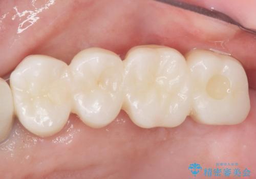 歯肉移植(FGG)による角化歯肉の獲得で長持ちするインプラントへ 50代男性の症例 治療後