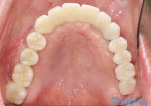 骨が薄く難しい上の奥歯のインプラント 50代男性の治療後