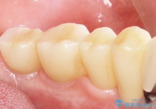 歯がぐらぐらで咬めない 奥歯のインプラント 50代男性の治療後