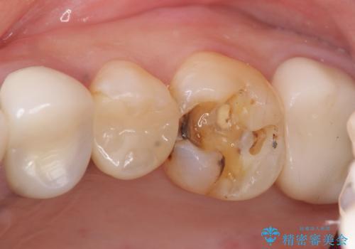 銀歯の下が虫歯になっている セラミックインレー 30代女性の治療前