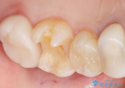 銀歯の下が虫歯になっている セラミックインレー 30代女性の治療中