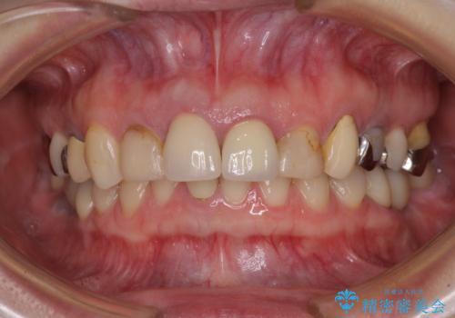 鼻の下を押すと痛い 抜歯を避けてきた歯を抜歯して自然な口元にの治療前