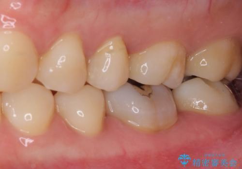 奥歯が痛い 保険治療後に症状が発現した歯のむし歯治療の治療前