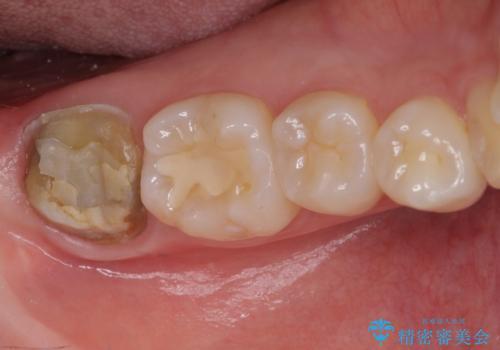 クラウンがすぐに外れてしまう 歯冠長延長術を用いた補綴治療の治療前