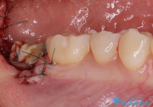 クラウンがすぐに外れてしまう 歯冠長延長術を用いた補綴治療の治療中