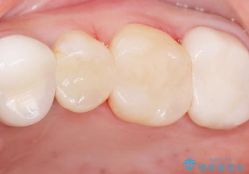 銀歯の下が虫歯になっている セラミックインレー 30代女性の症例 治療後