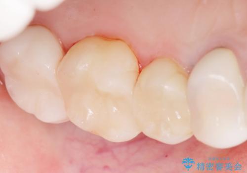 銀歯の下が虫歯になっている セラミックインレー 30代女性の治療後