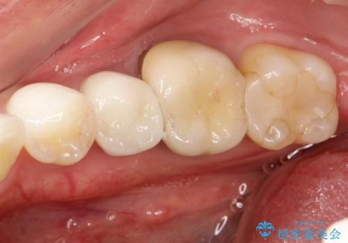 歯肉にできものがある、根管治療からセラミッククラウンまでの治療前