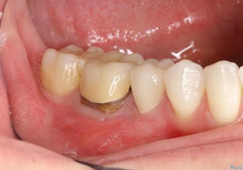 歯肉にできものがある、根管治療からセラミッククラウンまでの治療中