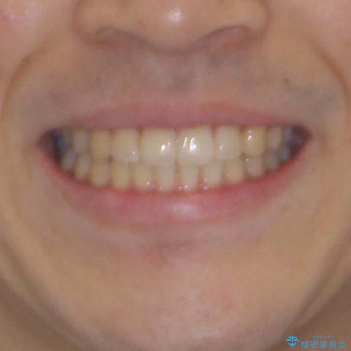 インビザライン・ライトによる矯正治療の後戻り改善の治療後(顔貌)