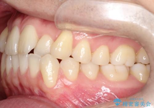 【クリア装置】前歯の凸凹を綺麗にしたいの治療前
