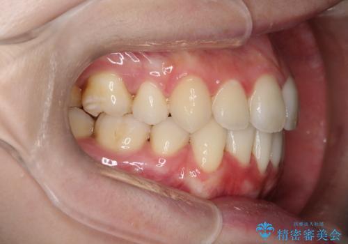 口元が出てるの気になる ハーフリンガルによる抜歯矯正での横顔改善の症例 治療後
