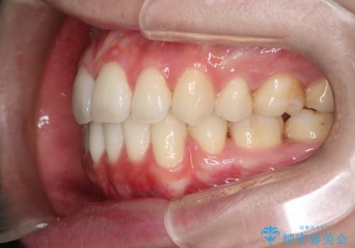 口元が出てるの気になる ハーフリンガルによる抜歯矯正での横顔改善の治療後