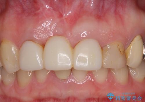 鼻の下を押すと痛い 抜歯を避けてきた歯を抜歯して自然な口元にの治療中