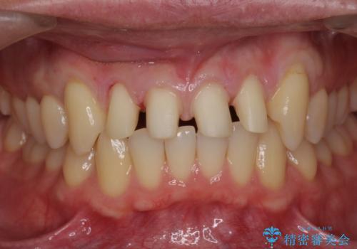 前歯のすき間 セラミックで綺麗に 最短で治療の治療中